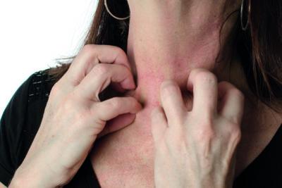 Hypnose Skolen - Blogindlæg Allergi